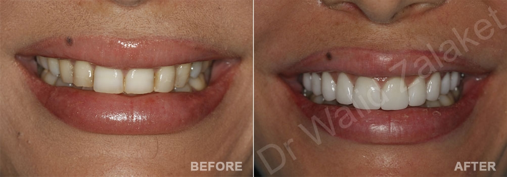 Hollywood smile Lebanon - female case