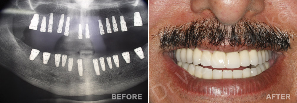 dental Implant Lebanon