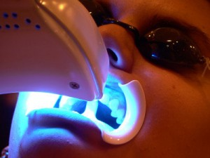 laser teeth whitening Lebanon