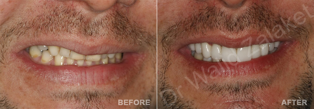 Male lip enhancement