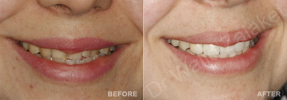 Thin Veneers Lebanon