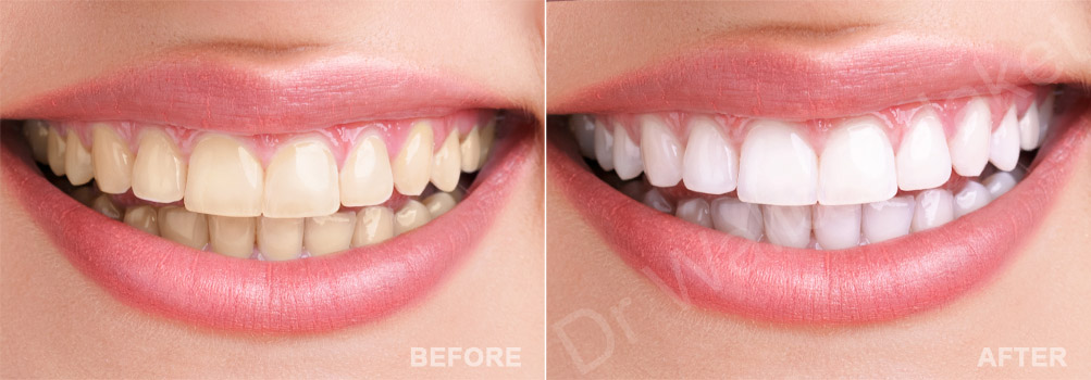 teeth whitening Lebanon