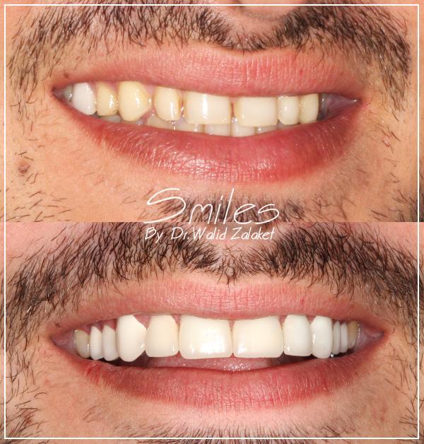 Hollywood smile Makeover Lebanon