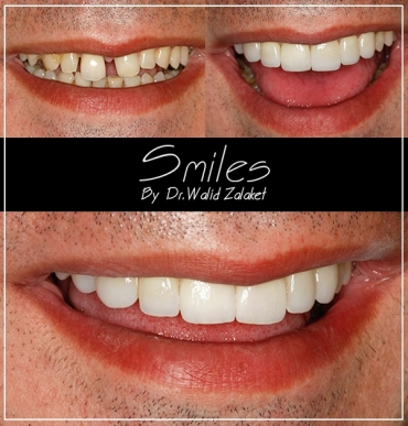 Hollywood smile Makeover Lebanon