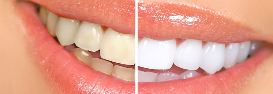 Teeth shades are easier to whiten